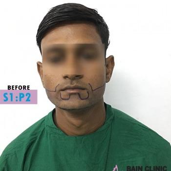 Before Beard Transplant Marking Image | Patient 1
