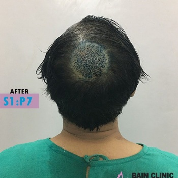 After Hair Transplant Back Side Image | Patient 1